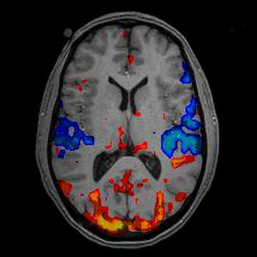 brain fmri scan - photo #7